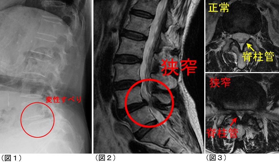 腰部脊柱管狭窄